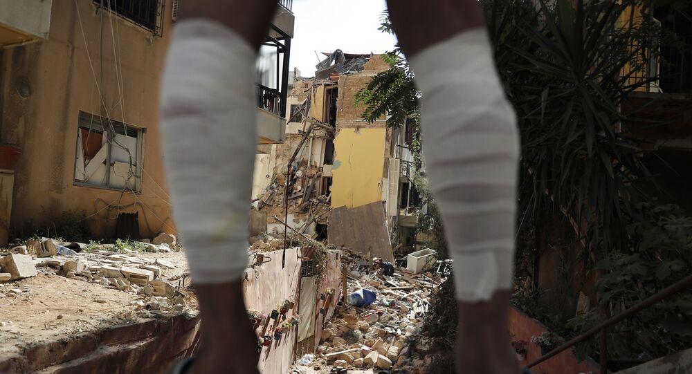 Homem com ferimento nas pernas observa destruição causada por explosão que atingiu porto de Beirute, no Líbano