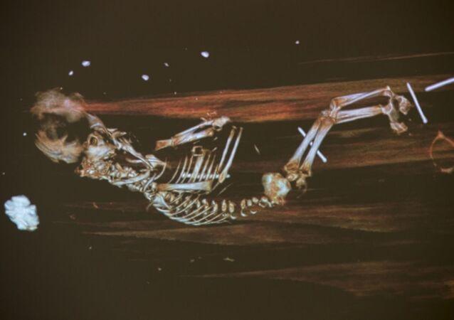 Raio X do feto encontrado sob as pernas do bispo Peder Winstrup enterrado na Catedral de Lund, na Suécia