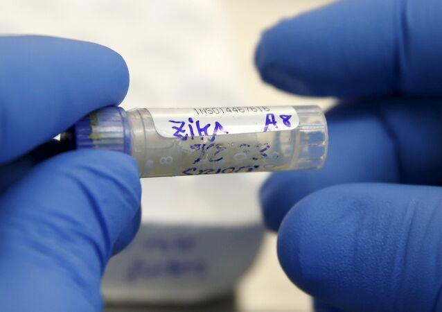 Agente de saúde analisa amostra de sangue de paciente com suspeitas de zika