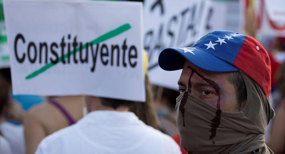 Um manifestante com uma ferida falsa participa de um protesto de venezuelanos em Espanha contra as eleições da Assembléia Constituinte da Venezuela, em Madri